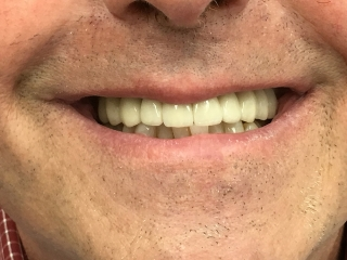 After - Implant Crown and Bridge