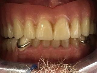 After - Implant Over Denture