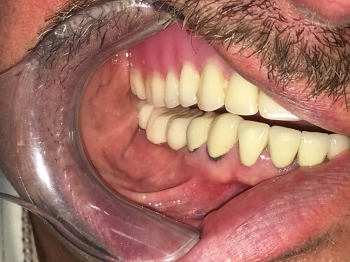 After - Implant Crowns
