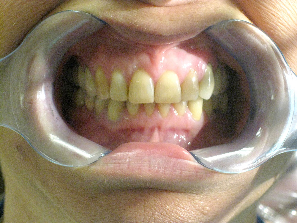 After - Invisalign