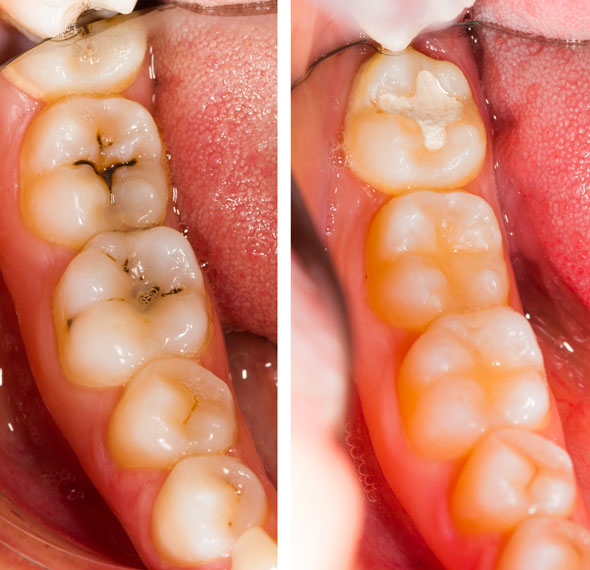 Dental Service - Fillings & Restorations