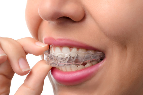 Dental Service - Invisalign