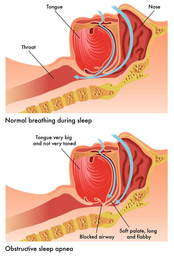 Dental Service - Obstructive Sleep Apnea