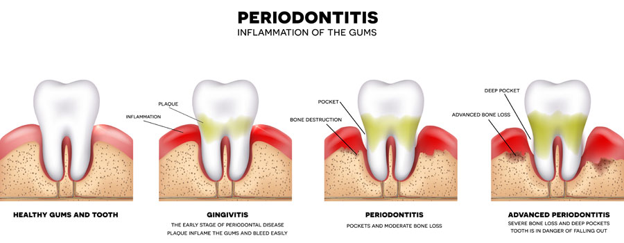 Dental Service - Periodontal Disease