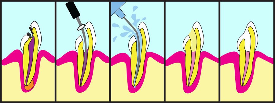 Dental Service - Root Canals
